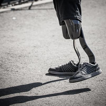 Prothesen in Bewegung